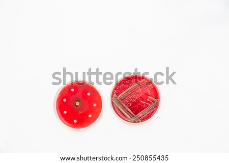 Two Petri dishes with bacteria growing in them. Medical tests and research. Bacterial cultures in hospital laboratory glassware. - stock photo
