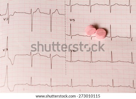 Two pink pills lying on ECG result - stock photo