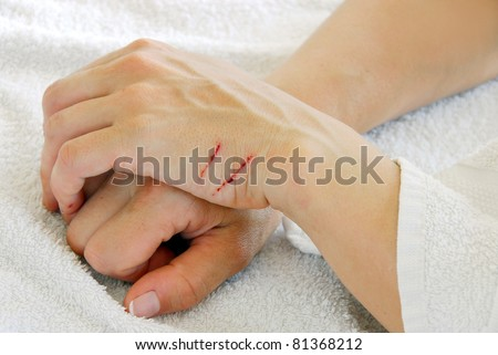 two scratch on female crossed arms closeup - stock photo