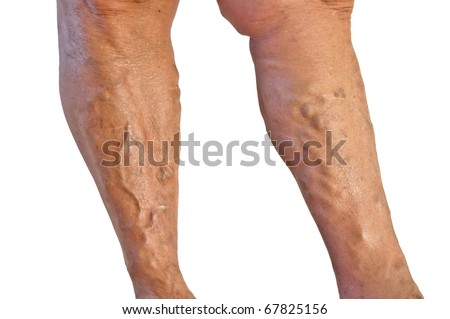 Two tanned legs with varicose veins on white background - stock photo