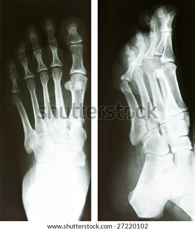 two x-ray of a human foot, heath and medical research - stock photo