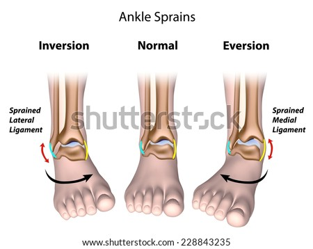 Types of ankle sprains - stock photo