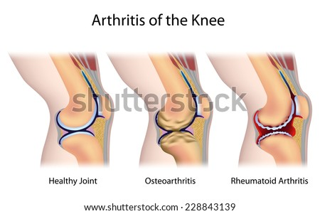 Types of arthritis of the knee joint