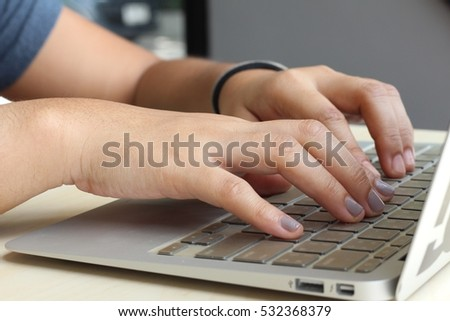 Typing on the laptop for work