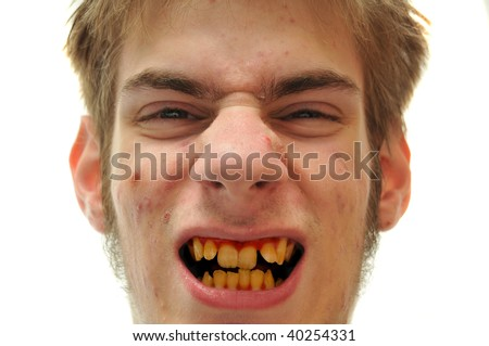 Ugly man showing off crooked yellow teeth