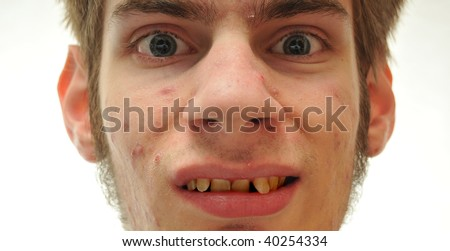 Ugly man smiling with crooked yellow teeth and acne - stock photo