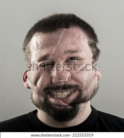 Ugly man with fat cheeks and beard portrait - stock photo