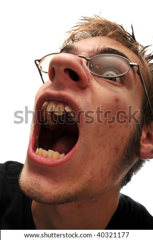 Ugly man with mouth open and acne. Wearing glasses. - stock photo