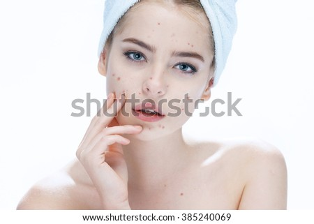 Ugly problem skin girl. Woman skin care concept / photos of european girl on white background - stock photo