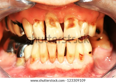 Unhealthy denture and  Frontal teeth abrasion result of incorrect teeth cleaning - stock photo