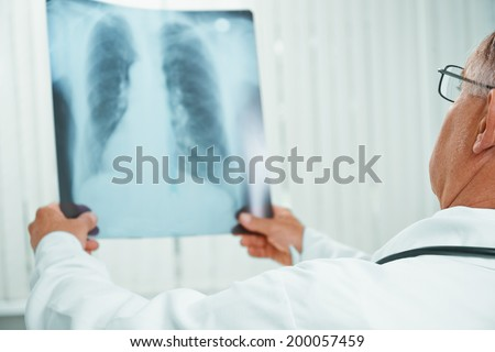 Unrecognizable older man doctor examines x-ray image of lungs in a clinic - stock photo