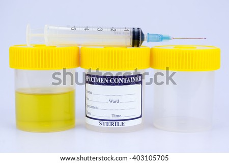 Urine sample bottle, syringe and pills isolated with shallow depth of field (dof)