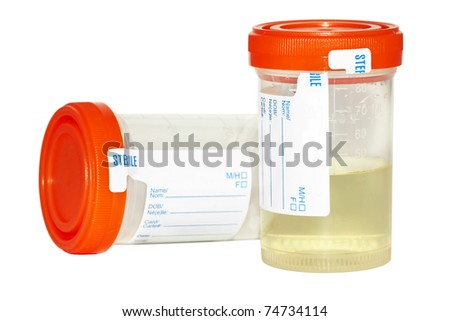 Urine sample collection bottles, one empty and sterile and the other filled with pee to be analyzed isolated on white background. - stock photo