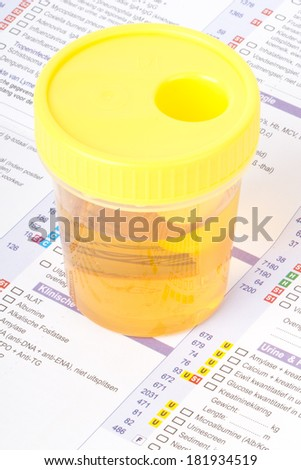 Urine sample on a form - stock photo