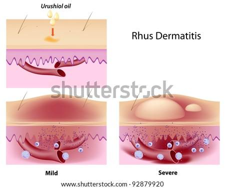 Urushiol oil induced contact dermatitis - stock photo