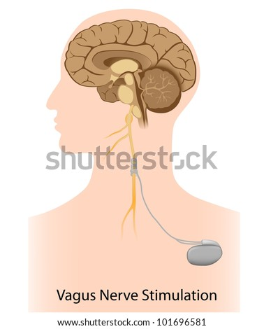 overview of vagus nerve stimulation Why vagus nerve stimulation in 1985 zabara proposed that vns might disrupt the hypersynchronous brain electrical activity that underlies epileptic seizures, and subsequent studies in animal models of epilepsy suggested that this was the case1 although the mechanism of action of vns is still not fully understood, it was felt that continual stimulation of the vagus nerve by an implantable.