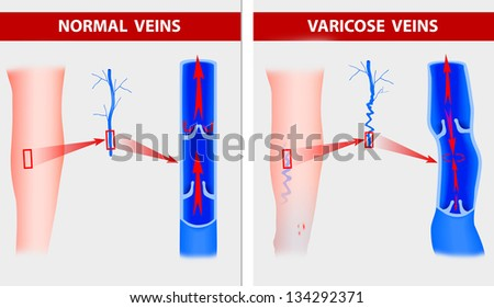 Varicose-veins Stock Images, Royalty-Free Images & Vectors ...