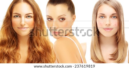 Various skin problems. Freckles, acne, pigmentation - stock photo