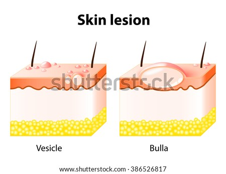 Vesicle Bulla Skin Lesion Stock Illustration 386526817 ...