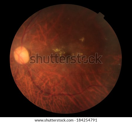 View inside human eye disorders - showing retina, optic nerve and macula .