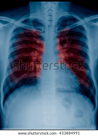 View of a adult x-ray film, taken to examine the lungs for a medical diagnosis red color show  secretion or cancer in lungs - stock photo