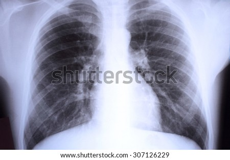 View of a child x-ray film - stock photo