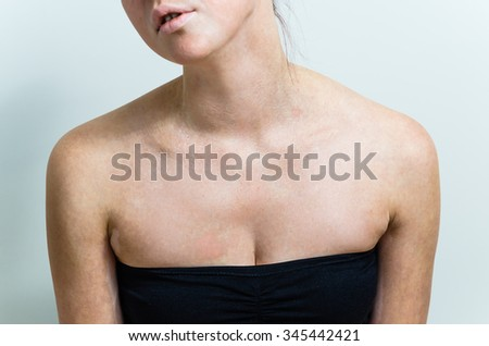 vitiligo affected female chest and face