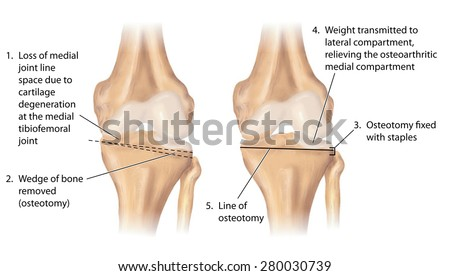 Osteotomy Stock Images, Royalty-Free Images & Vectors | Shutterstock
