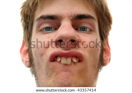 Weird white Caucasian facial expression isolated on white background. - stock photo
