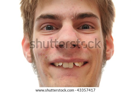 Weird white Caucasian facial expression smiling isolated on white background. Crooked teeth, he needs braces - stock photo