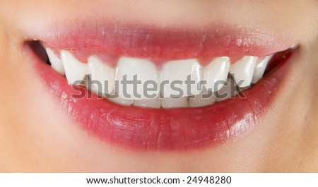 White healthy teeth of smiling woman