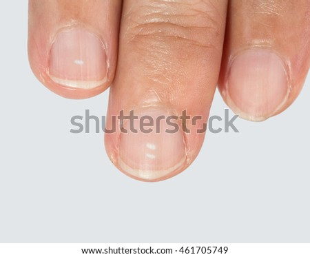 White spots on fingernails caused by a calcium deficiency.