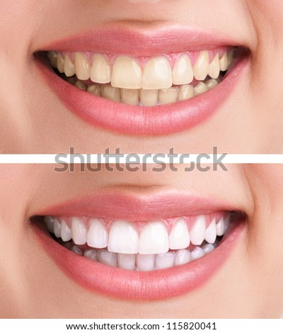 whitening - bleaching treatment ,before and after ,woman teeth and smile, close up, isolated on white - stock photo