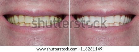 Whitening. Dental care. healthy man white teeth.