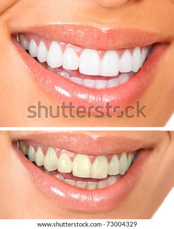 Whitening. Dental care. healthy woman white teeth. - stock photo