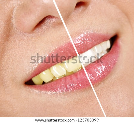Whitening treatment - stock photo