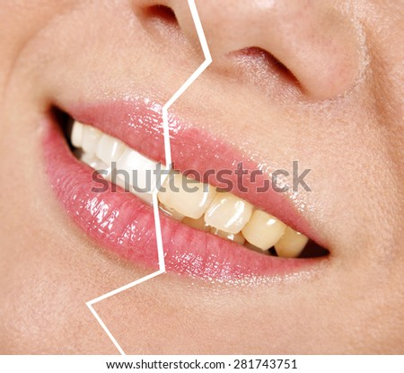 Whitening treatment