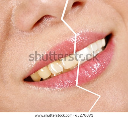 Whitening treatment, before/after - stock photo