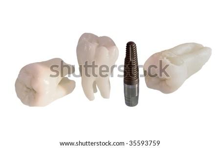 Wisdom teeth and dental implant - stock photo