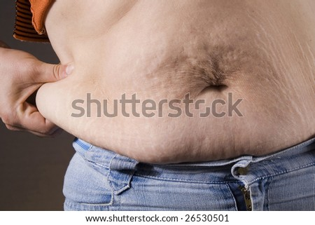 woman checking her cellulite on the stomach - stock photo