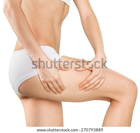 Woman. Female squeezes cellulite skin on her legs - close-up shot on white background - stock photo