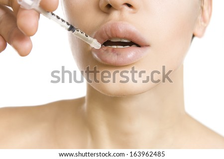 woman getting an injection - real lip bruise after injection (side effect) - stock photo