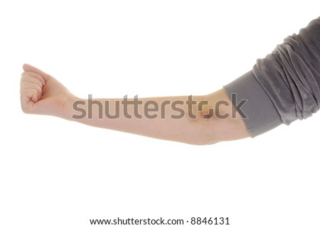 Woman Hand with bruise - stock photo