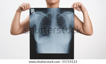 woman holding an x-ray image of her own - stock photo