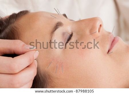 Woman receiving facial acupuncture treatment - stock photo
