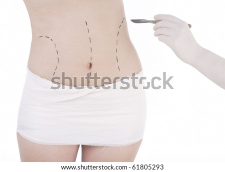 Woman's belly prepared to plastic surgery with surgeon's hand with scalpel