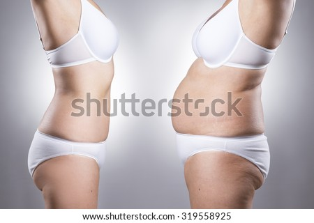 Woman's body before and after weight loss on a gray background - stock photo