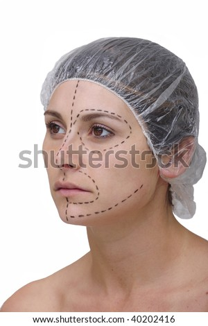 woman´s face before plastic surgery, face lift - stock photo
