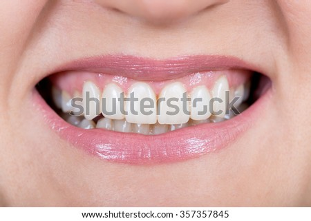 Woman smile. Teeth restoration. Dental care. Macro.