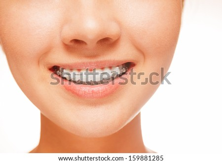 Woman smile: teeth with braces, dental care concept, front view - stock photo